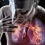 A tüdőrák és a cigaretta